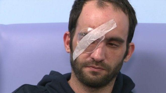 Мотоциклист потерял глаз из-за брошенного яйца
